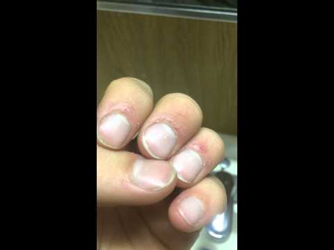 Cuticle damage
