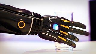 Бионическая рука которая может расти вместе с человеком