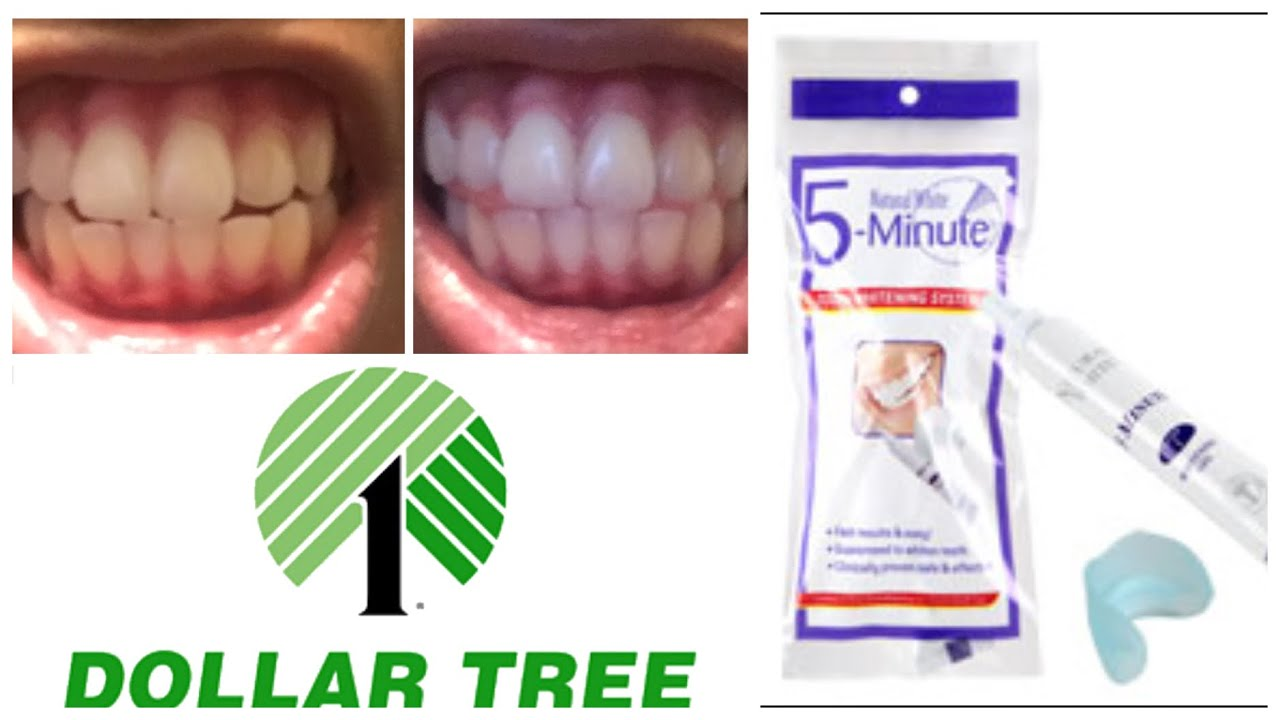 Dollar Tree 5 Mintue Teeth Whitening Review Youtube