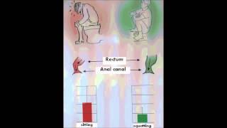 Blood in stool bleeding recurrent in men woman pregnancy