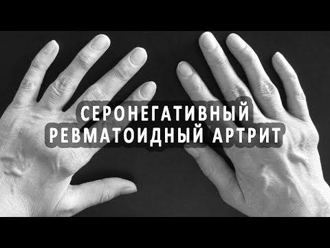 Истории болезни по физиотерапии