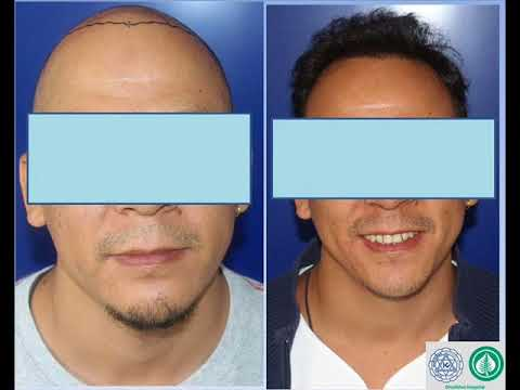 Hair transplant in Nepal : Dhulikhel Hospital