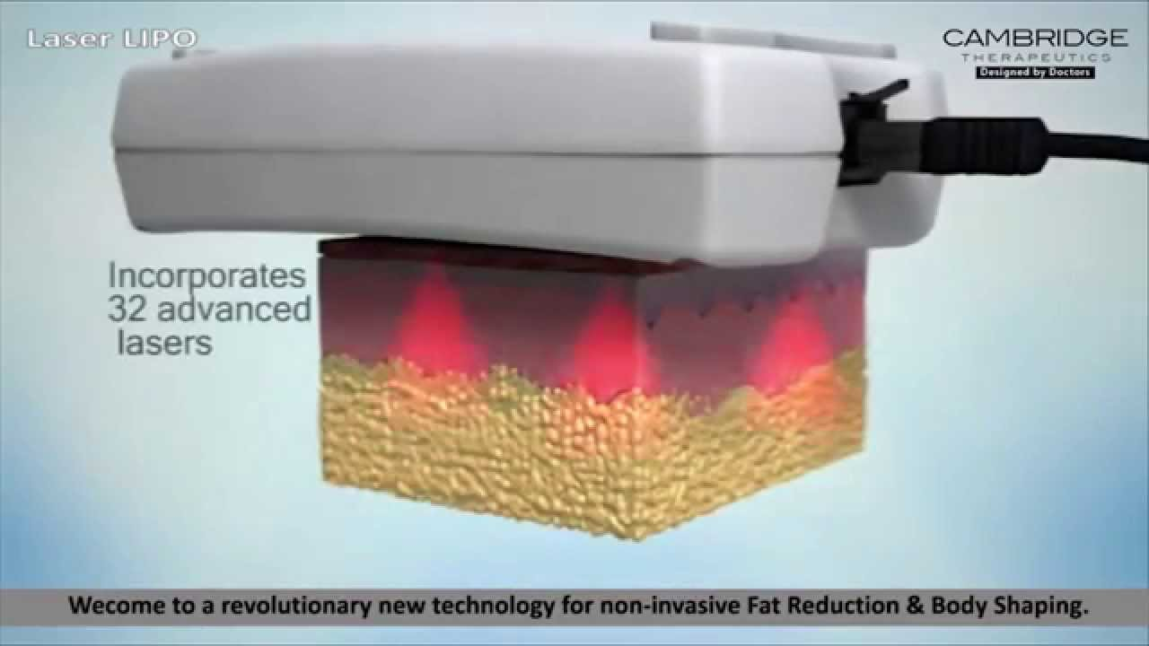 Laser LIPO Fat Removal - YouTube