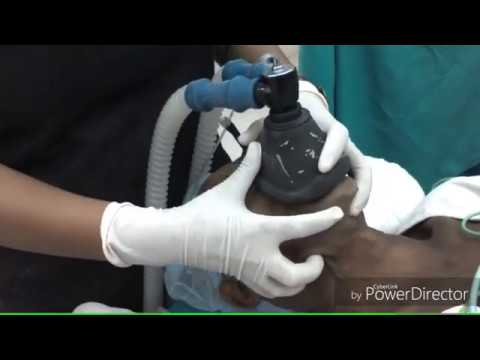 Bougie Aided difficult intubation