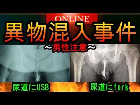 【中国13歳】尿道にUSBを突っ込んだ結果wwww