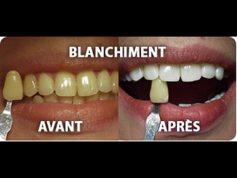 recette pour avoir des dents plus blanches youtube. Black Bedroom Furniture Sets. Home Design Ideas