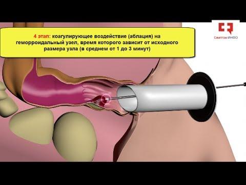 Лечение геморроя радиочастотной коагуляцией без операции в течение 15 минут: техника и этапы