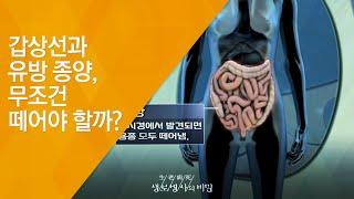 갑상선과 유방 종양, 무조건 떼어야 할까? - (201…