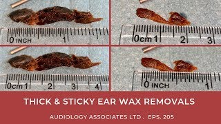 THICK & STICKY EAR WAX REMOVAL - EP 205