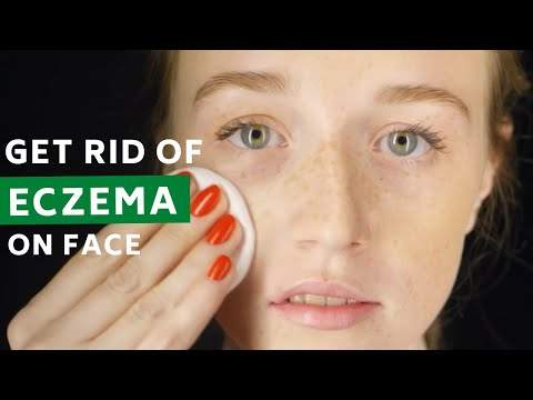 How to Cure Eczema on Face Permanently – 5 Best Natural Home Remedies!