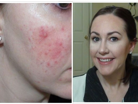 foundation routine rosacea extreme redness acne youtube