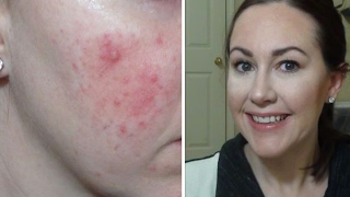 what type of rosacea do i have