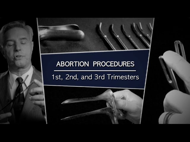 Abortion Procedures