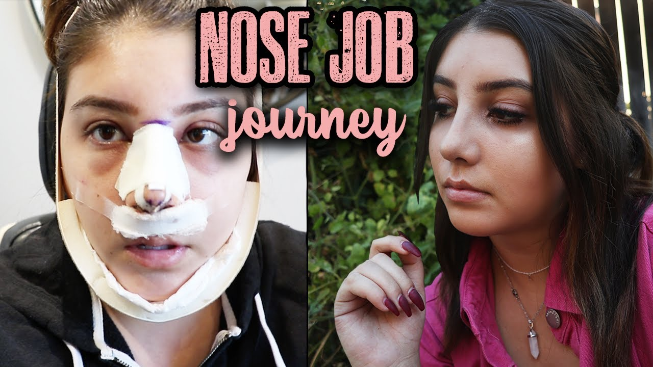 I GOT A RINOPLASTY | MY FULL SURGERY AND RECOVERY EXPERIENCE!