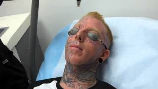 Incredible! Face Tattoo Removal - 3rd Treatment at Dr. Tattoff