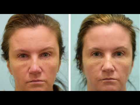 Dallas Upper Blepharoplasty/ Eyelid Surgery Before and After Photos
