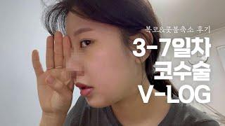 vlog_ 복코수술&콧볼축소 코수술 3-7일 후…
