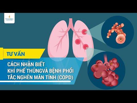 Cách nhận biết khí phế thũng và bệnh phổi tắc nghẽn mạn tính (COPD)
