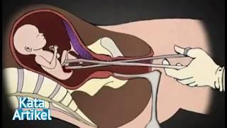 Ternyata Begini Proses Aborsi Itu | Video Proses Aborsi