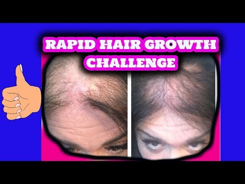 Thin and Bald  Hair Growth Challenge | 3 Ingredients