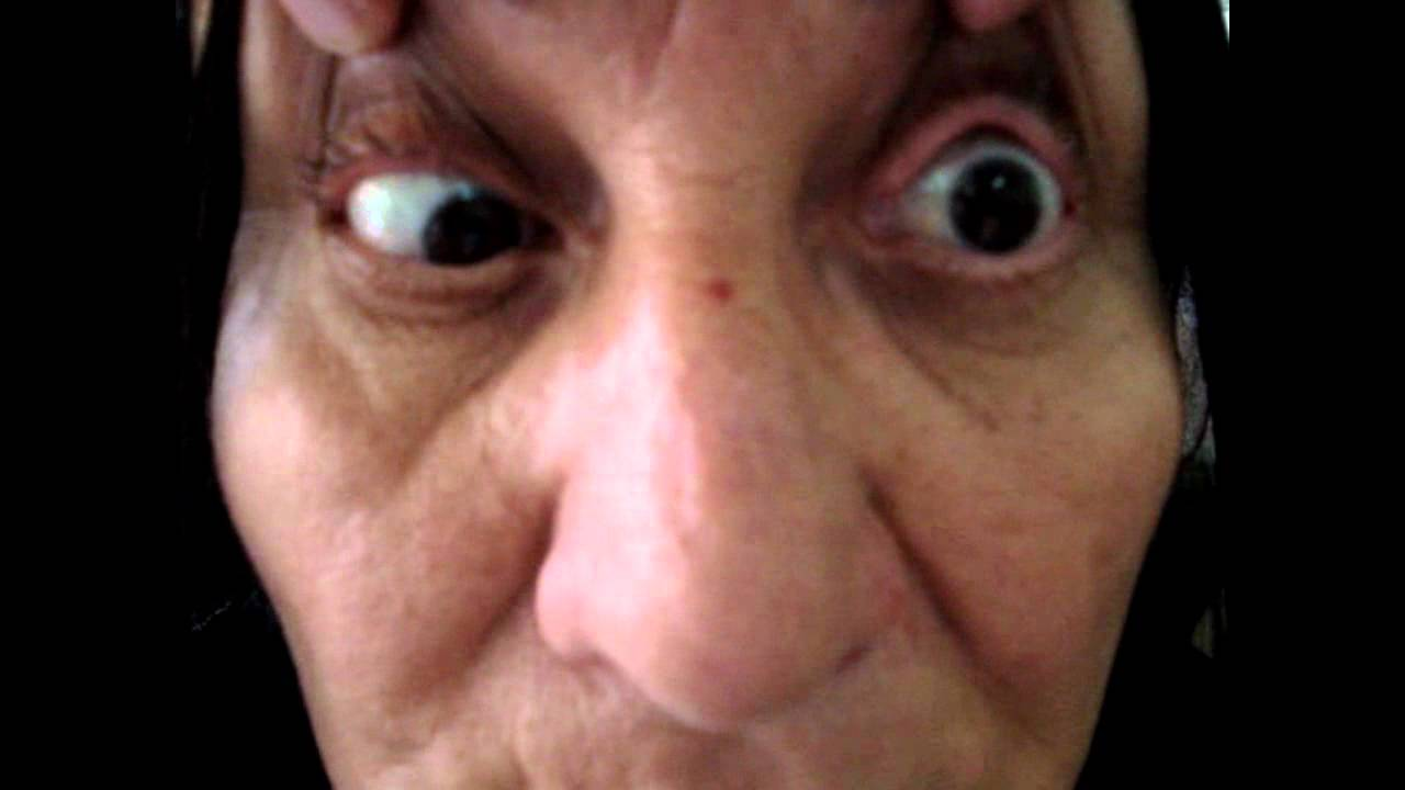 Ophthalmoplegia