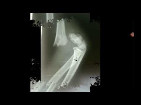 Перелом плечевой кости со смещением. Перелом руки. Лечение.