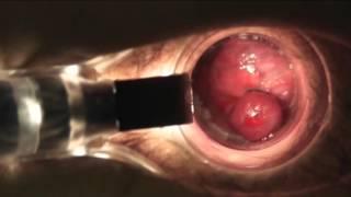 видео Удаление геморроидальных узлов
