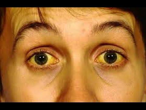 Yellow Skin Symptoms And Treatment Jaundice Segment 2