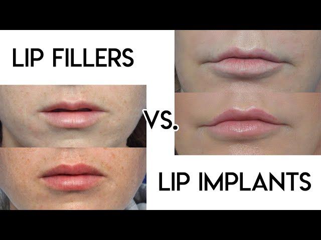 Lip Filler vs Lip Implants