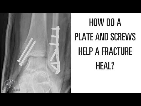 How do plates and screws help a broken bone heal?