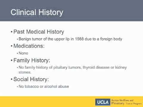 Clinical History - Craniopharyngioma | UCLA Pituitary Tumor Program