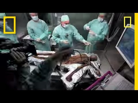 Iceman Autopsy | National Geographic