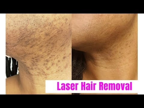 VLOG| Laser Hair Removal for Black Women| Romeo & Juliette Laser Hair Removal