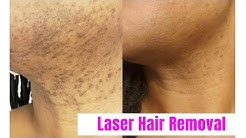 VLOG| Laser Hair Removal for Black Women| Romeo & Juliette Laser Hair Removal