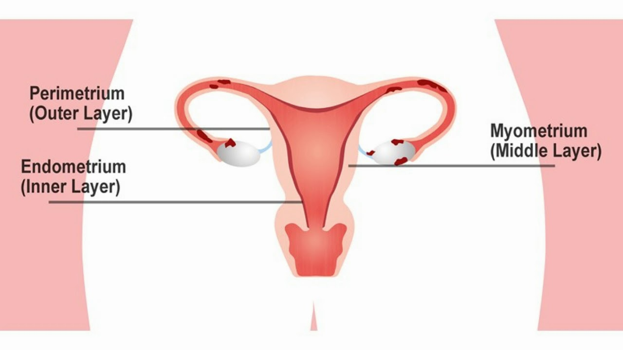 Endometriosis and Endometrial Cancer