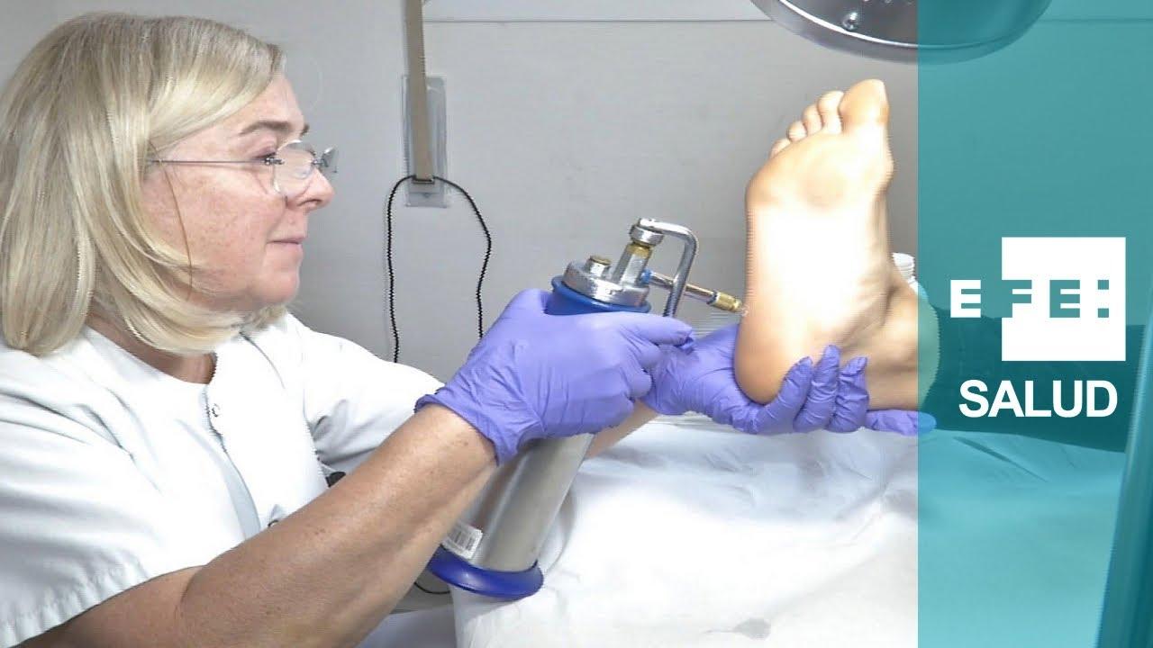 Crioterapia, metoda de tratament pentru veruci, cheratoze, papiloame | nucleus-mc.ro
