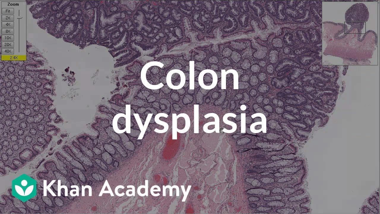 Colon dysplasia | Gastrointestinal system diseases | Health & Medicine | Khan Academy