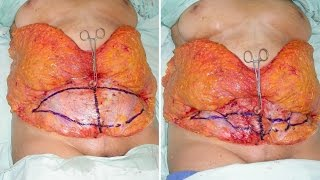 Repeat youtube video Abdominoplastia TULUA detalles de técnica para cirujanos plásticos