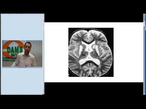 #Radiology Spotter Series : #MRI & Gray Matter Disorders by Dr Sumer Sethi