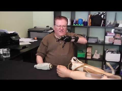 For one man, a $50 3D printed hand beats a $42,000 prosthetic