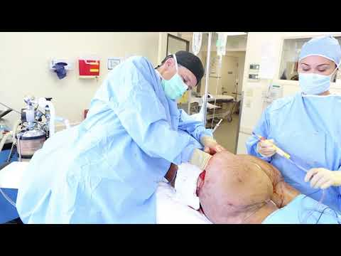 CUTTING RAW SILICONE FROM BUTTOCKS