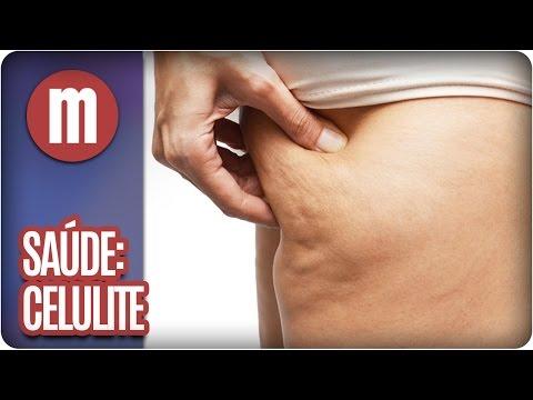 Celulite - Saúde - Mulheres  (31/05/16)