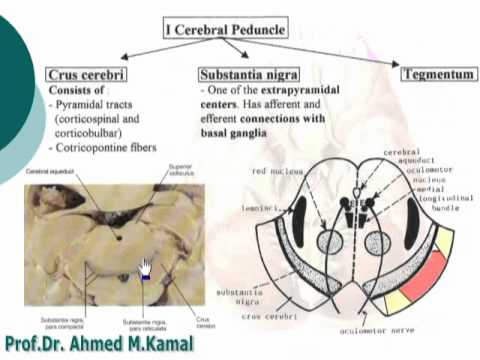 2 Cerebral peduncles د / احمد مصطفى كمال - YouTube