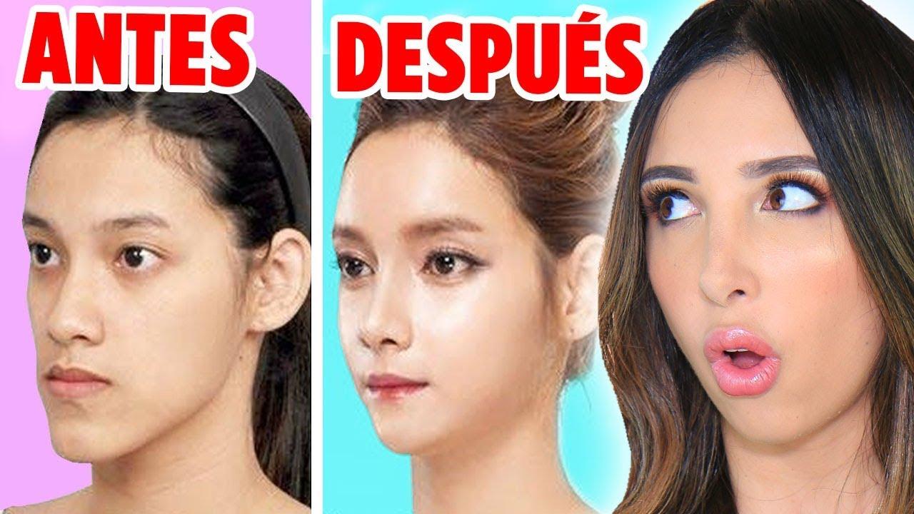 Cirugias Plasticas Coreanas Extremas Antes Y Despues Cambios De Look Extremos Mariale Youtube