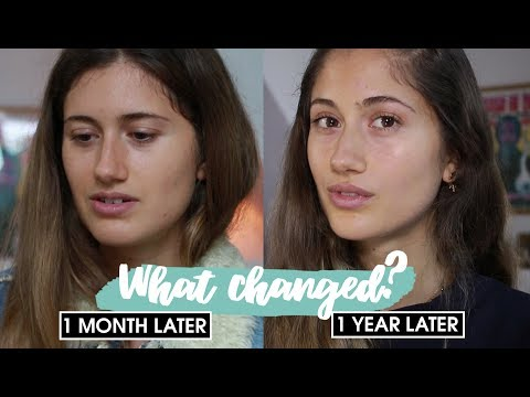 No Makeup Challenge ✨ 1 YEAR LATER