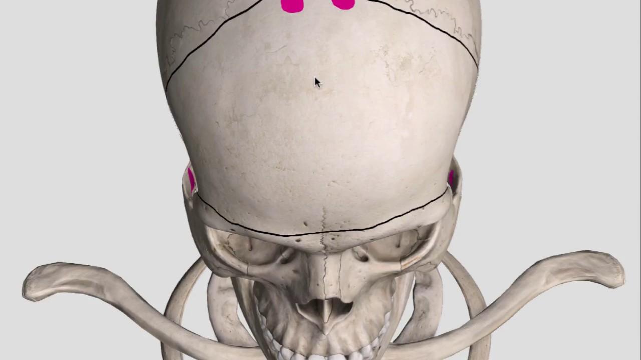 bifrontal decompressive craniectomy bony cuts youtube