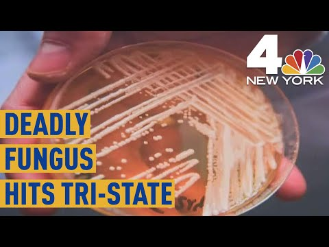 Drug-Resistant Superbug Candida Auris Spreading in New York  NBC New York
