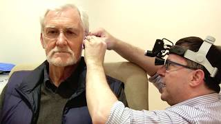 Ear Wax Removal By Microsuction In London Video HD