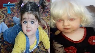 Top 10 Most Unusual & Odd Babies Around The World Unbelievable Amazing Kids