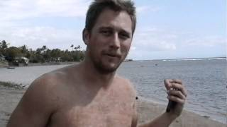 Hawaiian Monk Seal Attack :  Survivor  Wants Revenge!